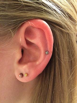 Rings Of Cartilage