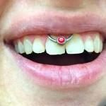 Lippenbändchen Piercing